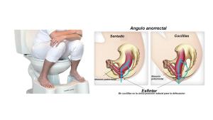 angulo rectal 1 300x169 - angulo rectal (1)