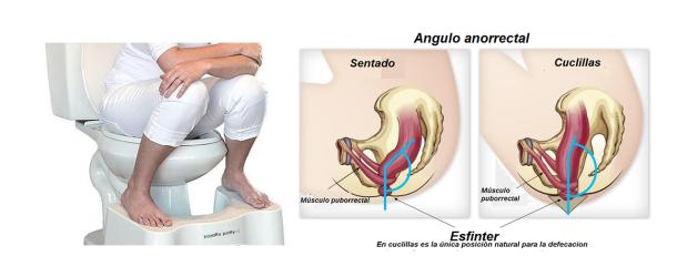 angulo rectal (1)