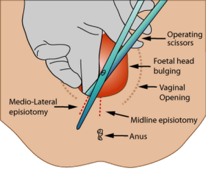 Episiotomy 300x253 - Episiotomy